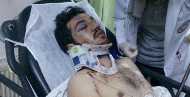 Çanakkale'de öğrencilere saldırı: 2 yaralı