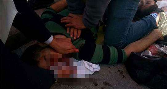 Ankara'da Barış Mitingine bombalı saldırı.