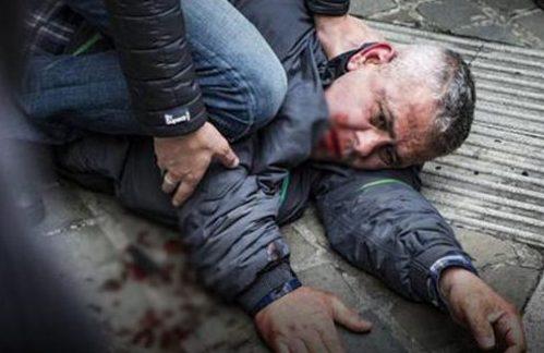 Türk saldırgan Belçikalı siyasetçiyi bıçakladı