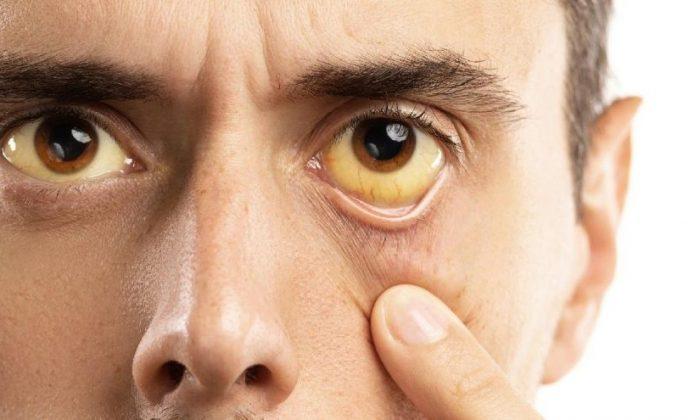 Yeni salgın mı? Sarı humma hastalığı nedir?